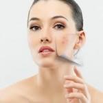 Công nghệ sinh học Bio Scar điều trị sẹo lõm?
