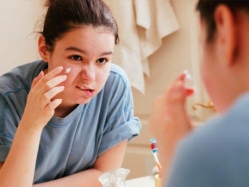 Nguyên nhân khiến da bị mụn và sẹo mụn