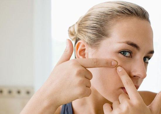 Nặn mụn không đúng cách là một trong những nguyên nhân gây nên sẹo lõm