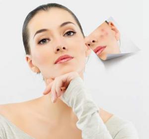 Tổng hợp cách chữa trị sẹo lõm, sẹo rỗ