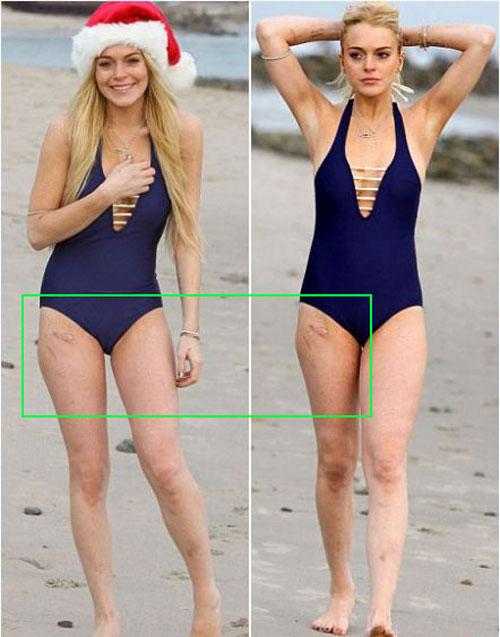 Lindsay lohan lộ sẹo khá lớn tại đùi