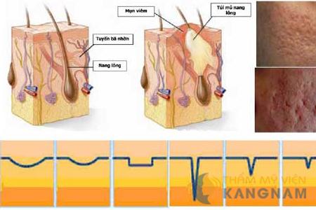 Trị sẹo lõm bằng công nghệ Bio Scar tại Bệnh viện thẩm mỹ Kangnam2
