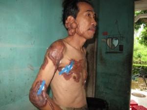 Người đàn ông với sẹo lồi khắp cơ thể