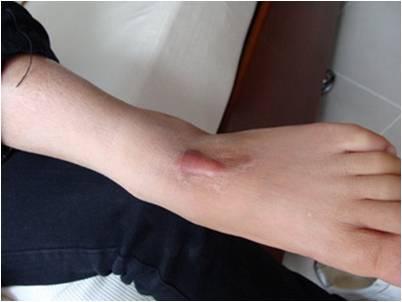 Sẹo lồi ở chân có trị được không?