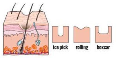 Nhiều nguyên nhân  gây nên tình trạng sẹo rỗ