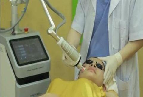 Ánh sáng Laser CO2 Fractional điều trị sẹo lồi